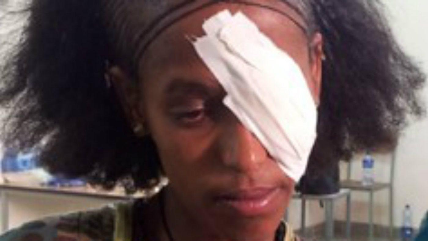 Abrehet med en lapp over øye etter trakom operasjonen.