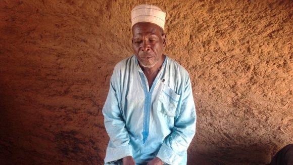 Ibrahim Hassan fra Nigeria lider av lymfatisk filariasis.