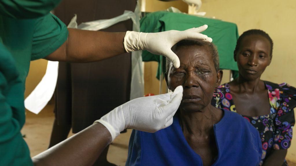 Trichiasispasient Edisa Nalubanga får fjernet bandasje etter en operasjon.