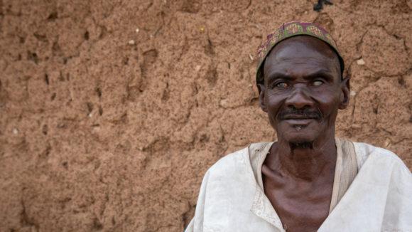 Mamodu står utenfor huset sitt, skadene elveblindhet har påført ham er synlige.