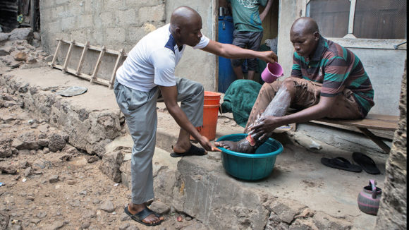 A health worker helps an LF patient to wash his leg.
