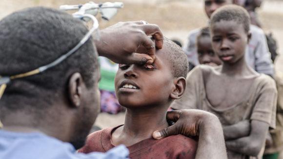 Øyekirurg Dr. Ndalela undersøker øynene til et barn for å se etter tegn på trakom.
