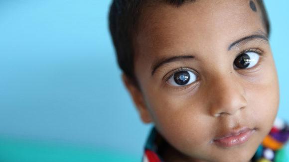 Nadir, tre år gammel grå stær-pasient, Fubaria, Bangladesh – nærbilde av Nadir som ser i kamera med synlig grå stær.
