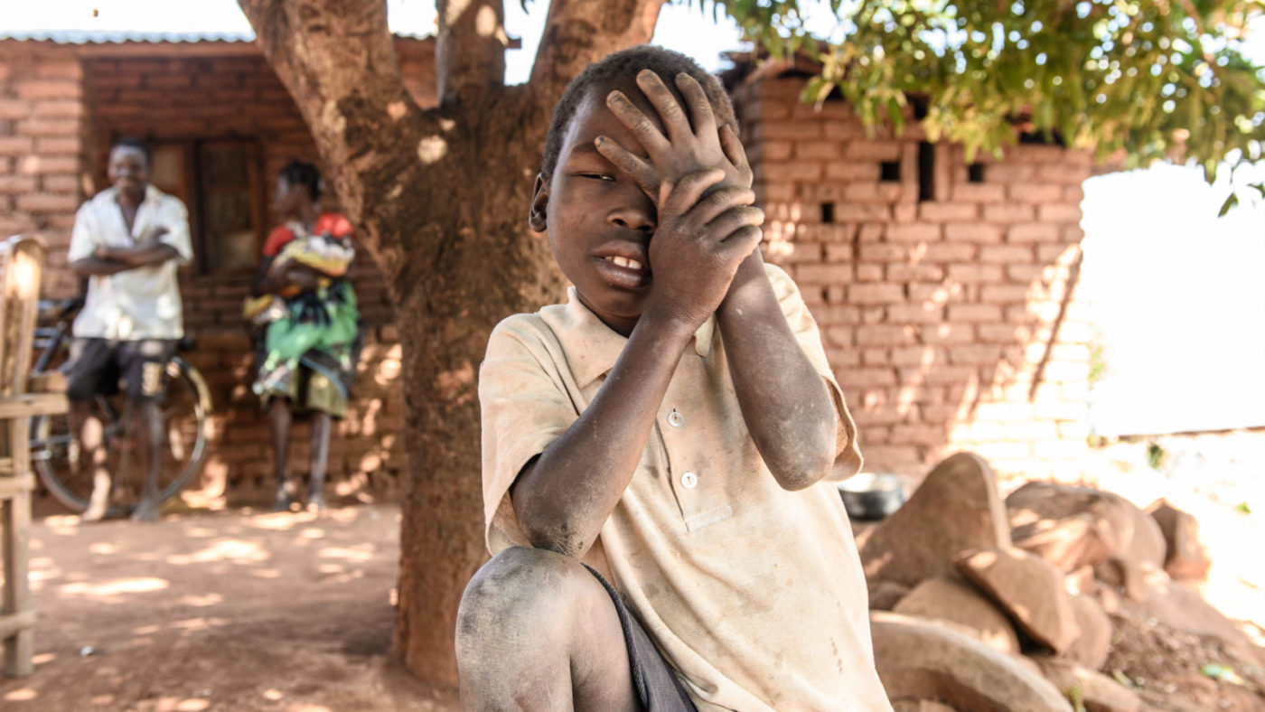 Taonga holder hånden sin mot øyet for å beskytte seg. Gutten plages av smerter.