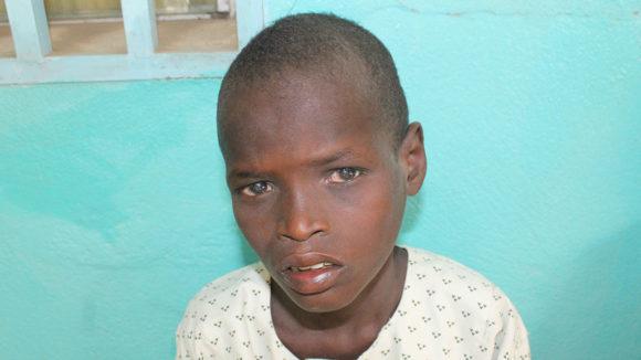 Aboubakar ser på kameraet med smertefulle øyne