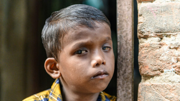 Sanjit standing next to a wall whilst looking past the camera. The cataracts are noticeable in his eyes.